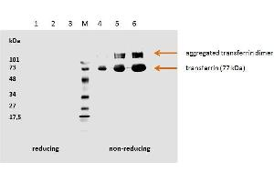 Western Blotting (WB) image for anti-Transferrin antibody (Tf) (N-Term) (ABIN94486)