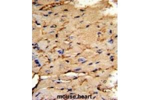 Image no. 1 for anti-phosphoprotein Enriched in Astrocytes 15 (PEA15) antibody (ABIN3003786)