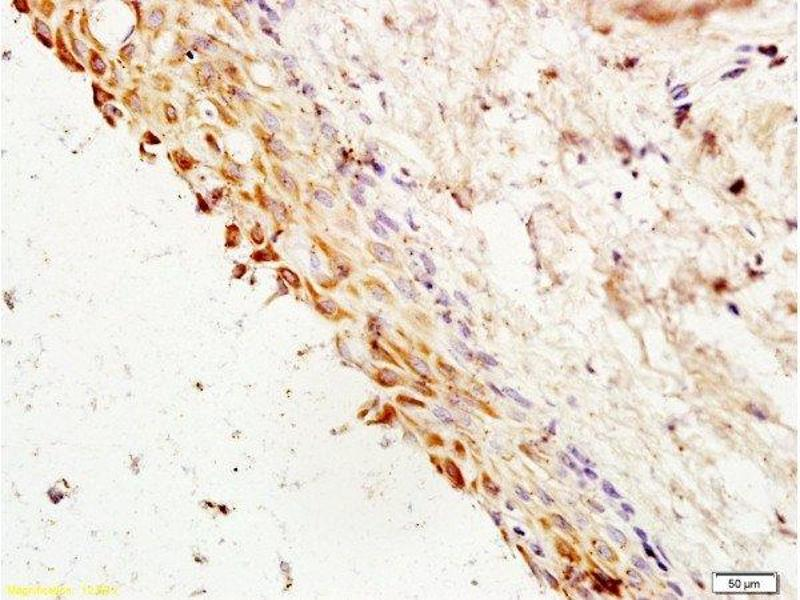 Immunohistochemistry (Paraffin-embedded Sections) (IHC (p)) image for anti-Cyclin G1 antibody (CCNG1) (AA 250-295) (ABIN685837)