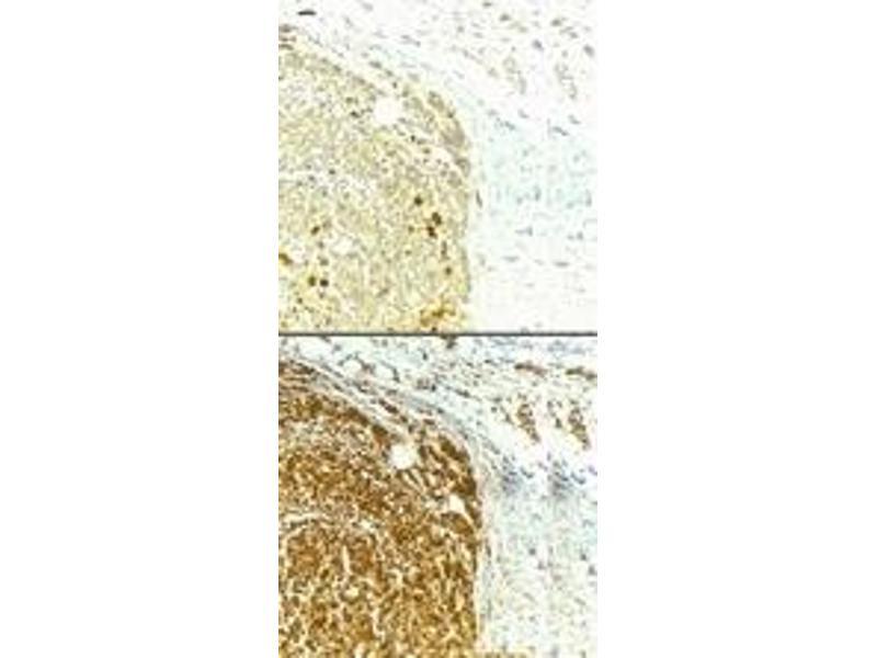 Immunohistochemistry (IHC) image for anti-Survivin antibody (BIRC5) (ABIN153009)
