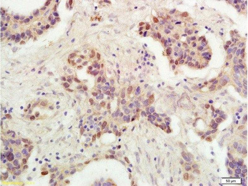 Immunohistochemistry (Paraffin-embedded Sections) (IHC (p)) image for anti-p53 antibody (Tumor Protein P53) (AA 240-290) (ABIN723935)