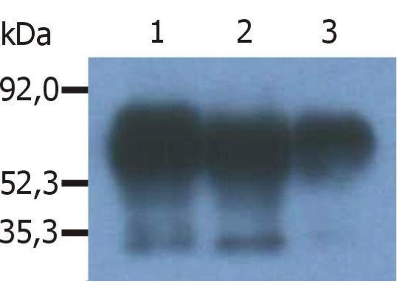 Image no. 1 for anti-phosphoprotein Associated with Glycosphingolipid Microdomains 1 (PAG1) (C-Term) antibody (ABIN94270)