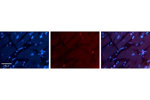 Image no. 2 for anti-Ring Finger Protein 1 (RING1) (Middle Region) antibody (ABIN2777815)