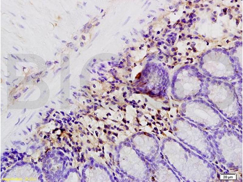 Immunohistochemistry (IHC) image for anti-Interleukin 1, beta (IL1B) (AA 190-240) antibody (ABIN872644)