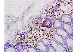 Immunohistochemistry (IHC) image for anti-Interleukin 1, beta (IL1B) (AA 190-240) antibody (ABIN872644)