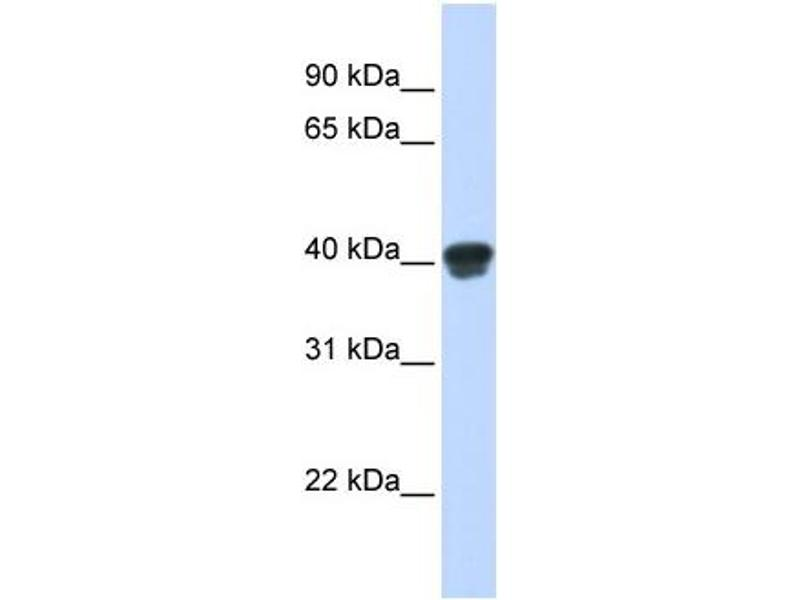 Western Blotting (WB) image for anti-MAP2K3 antibody (Mitogen-Activated Protein Kinase Kinase 3) (N-Term) (ABIN502211)