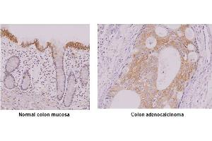 Image no. 2 for anti-Interferon Regulatory Factor 5 (IRF5) antibody (ABIN165416)