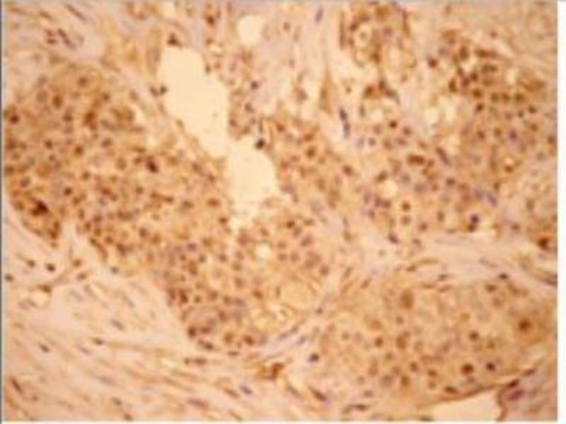 Immunohistochemistry (Paraffin-embedded Sections) (IHC (p)) image for anti-Jun Proto-Oncogene (JUN) antibody (ABIN446659)