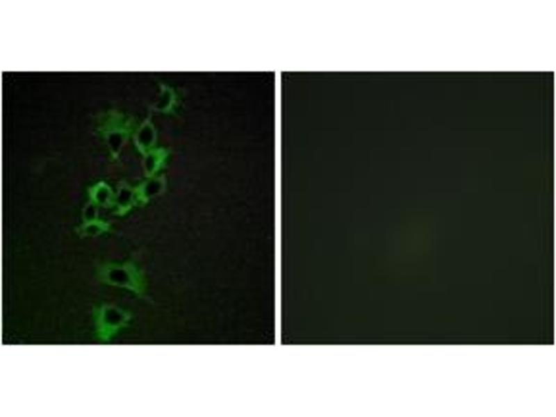 Immunofluorescence (IF) image for anti-V-Erb-A erythroblastic Leukemia Viral Oncogene Homolog 4 (Avian) (ERBB4) (AA 1250-1299) antibody (ABIN1532628)