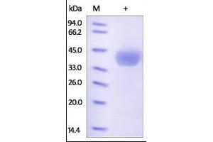Image no. 1 for Cell Adhesion Molecule 3 (CADM3) (AA 25-330) protein (His tag) (ABIN2181288)