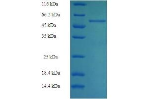 Image no. 1 for Aldolase B, Fructose-Bisphosphate (ALDOB) (AA 2-364) protein (His-SUMO Tag) (ABIN5709039)