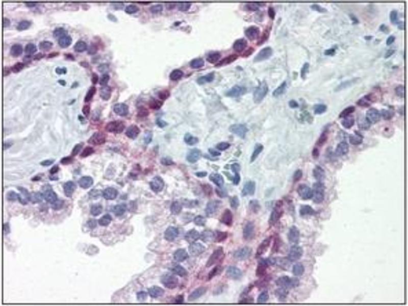 Immunohistochemistry (IHC) image for anti-Heat Shock Factor Protein 1 (HSF1) (AA 1-529), (N-Term) antibody (ABIN263933)