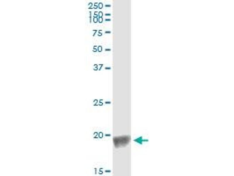 Immunoprecipitation (IP) image for anti-Baculoviral IAP Repeat-Containing 5 (BIRC5) (AA 1-100), (partial) antibody (ABIN559893)