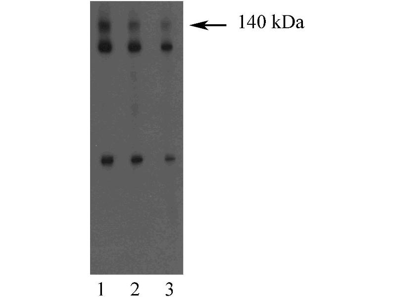 Western Blotting (WB) image for anti-Discs, Large Homolog 1 (Drosophila) (DLG1) (AA 5-213) antibody (ABIN968224)