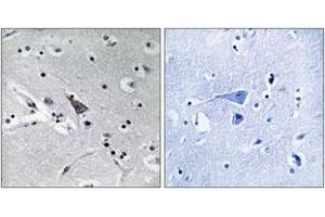 Image no. 1 for anti-Solute Carrier Family 6, Member 16 (SLC6A16) (AA 233-282) antibody (ABIN1535137)