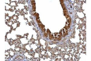 Immunohistochemistry (IHC) image for anti-Stratifin Antikörper (SFN) (C-Term) (ABIN2854692)