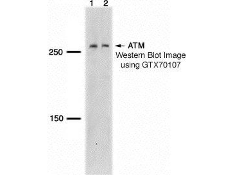 Western Blotting (WB) image for anti-Ataxia Telangiectasia Mutated (ATM) antibody (ABIN151622)