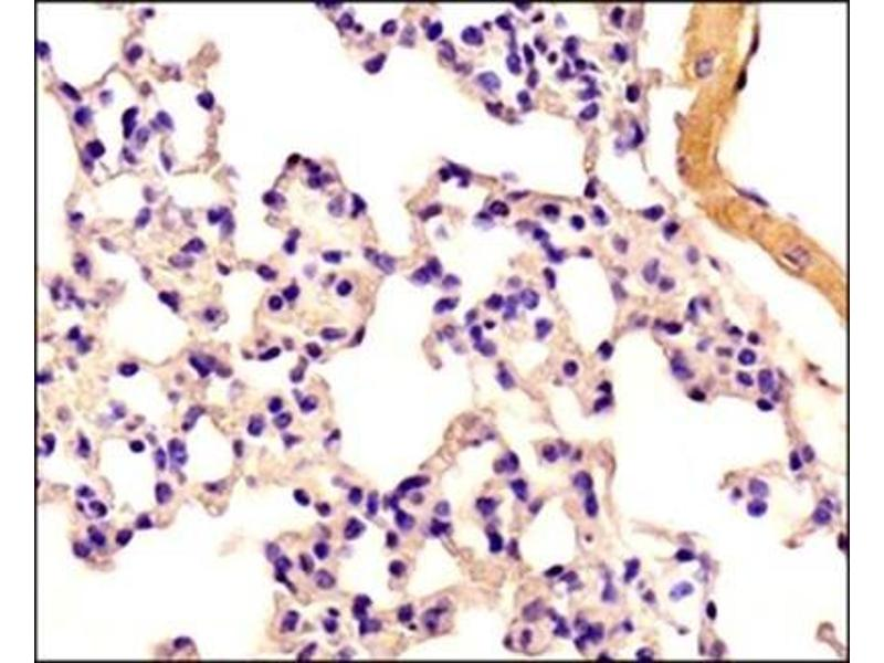 Immunohistochemistry (Paraffin-embedded Sections) (IHC (p)) image for anti-Caspase 4, Apoptosis-Related Cysteine Peptidase (CASP4) antibody (ABIN265762)