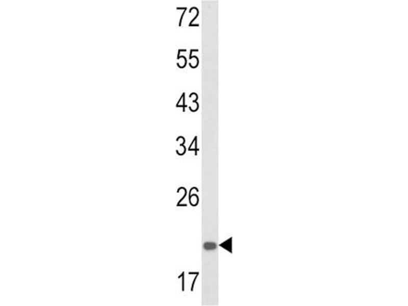 Western Blotting (WB) image for anti-Proteasome (Prosome, Macropain) Subunit, alpha Type, 7 (PSMA7) antibody (ABIN3003856)