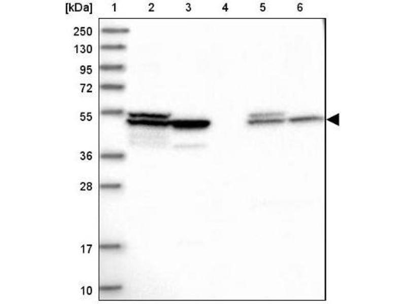 Western Blotting (WB) image for anti-Autoimmune Regulator (AIRE) antibody (ABIN4282478)