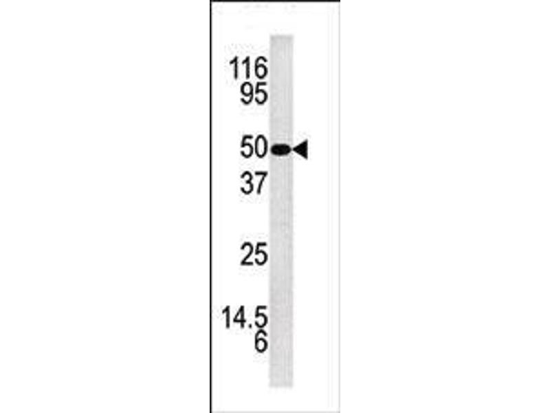 Western Blotting (WB) image for anti-Kallikrein 5 antibody (KLK5) (AA 144-174) (ABIN390305)