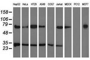 Image no. 1 for anti-Pyrroline-5-Carboxylate Reductase Family, Member 2 (PYCR2) antibody (ABIN1499983)