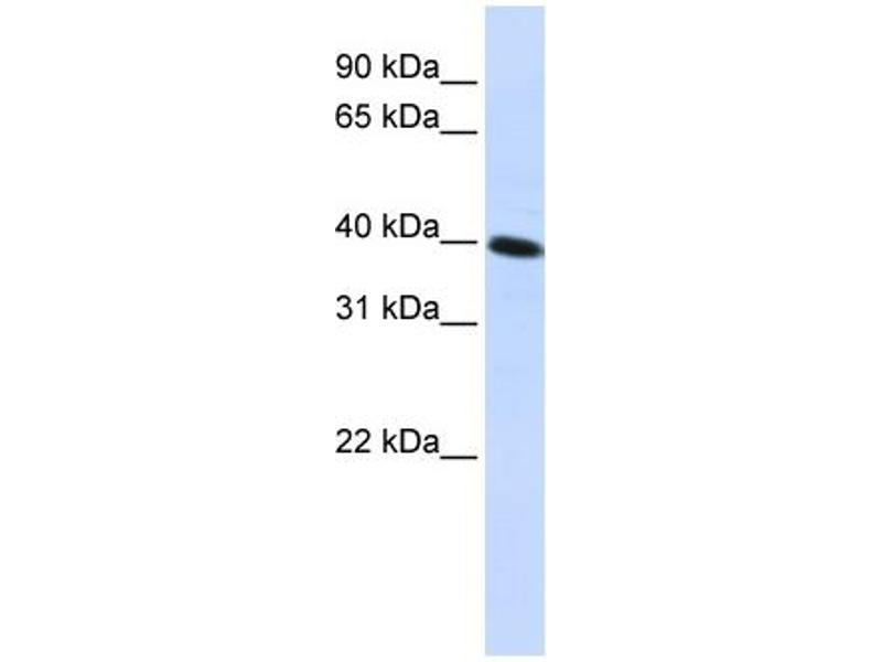 Western Blotting (WB) image for anti-Carbohydrate Kinase Domain Containing (Carkd) (Middle Region) antibody (ABIN405909)