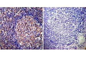 Immunohistochemistry (Paraffin-embedded Sections) (IHC (p)) image for anti-Vimentin (VIM) antibody (ABIN261651)