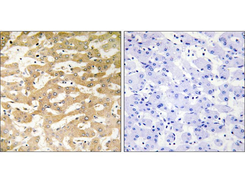 Image no. 1 for anti-Fas (TNFRSF6)-Associated Via Death Domain (FADD) antibody (ABIN1576422)