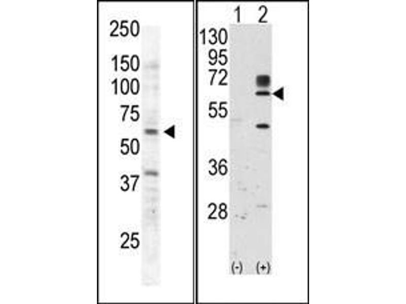 image for anti-RYK Receptor-Like Tyrosine Kinase (RYK) (AA 150-200) antibody (ABIN359937)