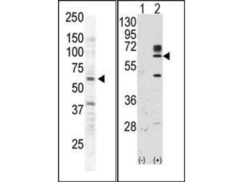 image for anti-RYK Receptor-Like Tyrosine Kinase (RYK) (AA 150-200) antibody (ABIN359937)