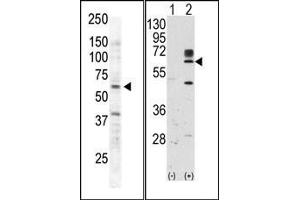 Image no. 2 for anti-RYK Receptor-Like Tyrosine Kinase (RYK) (AA 150-200) antibody (ABIN359937)