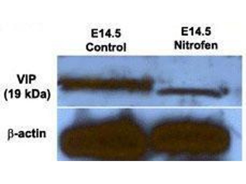Western Blotting (WB) image for anti-Vasoactive Intestinal Peptide (Vip) antibody (ABIN1585657)