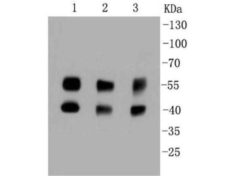 Western Blotting (WB) image for anti-Mitogen-Activated Protein Kinase 8 (MAPK8) (AA 1-400) antibody (ABIN5950694)