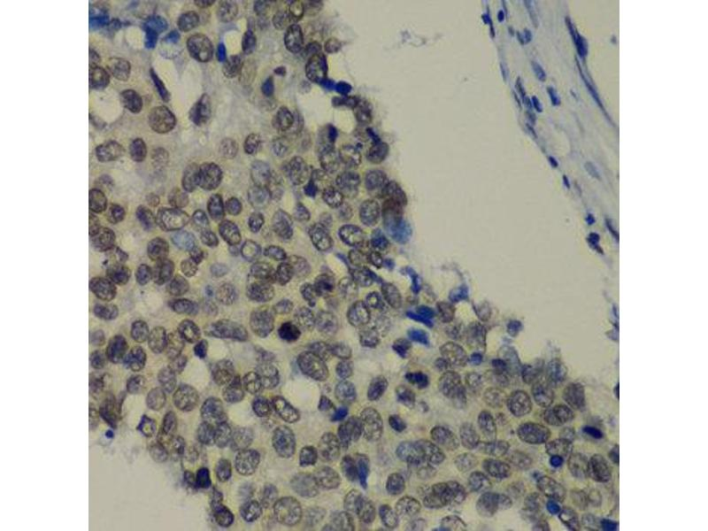 Immunohistochemistry (IHC) image for anti-TEA Domain Family Member 1 (SV40 Transcriptional Enhancer Factor) (TEAD1) antibody (ABIN2560341)