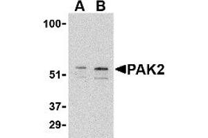 Image no. 1 for anti-P21-Activated Kinase 2 (PAK2) (C-Term) antibody (ABIN1030567)