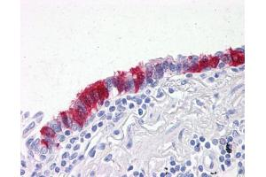 Image no. 1 for anti-Armadillo Repeat Gene Deleted in Velocardiofacial Syndrome (ARVCF) (AA 863-963), (partial) antibody (ABIN2470933)