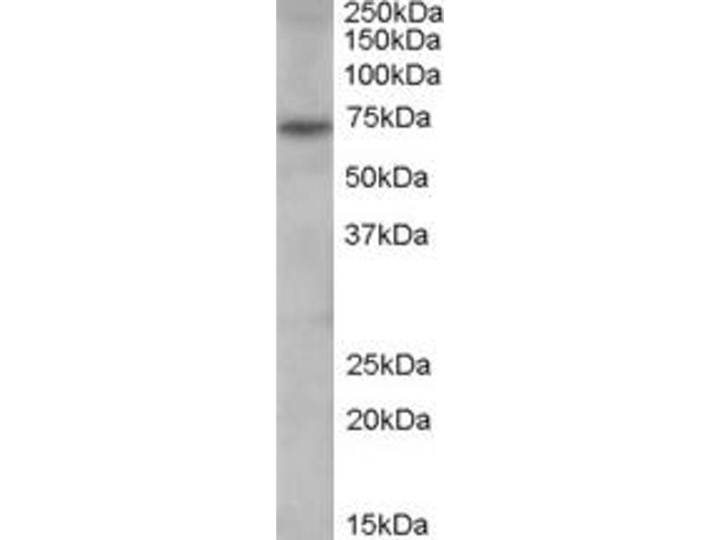 Western Blotting (WB) image for anti-PADI4 antibody (Peptidyl Arginine Deiminase, Type IV) (N-Term) (ABIN250318)