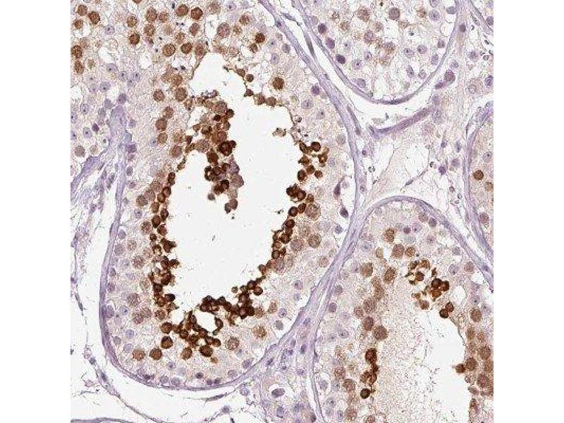 Immunohistochemistry (IHC) image for anti-Calreticulin 3 (CALR3) antibody (ABIN4287502)