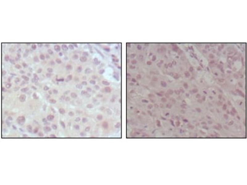 Image no. 1 for anti-Myeloid/lymphoid Or Mixed-Lineage Leukemia (Trithorax Homolog, Drosophila) (MLL) (AA 3751-3968) antibody (ABIN1108254)