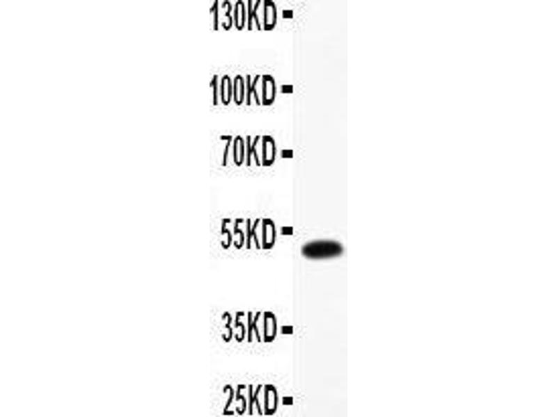 Western Blotting (WB) image for anti-Leukemia Inhibitory Factor (LIF) (AA 23-202) antibody (ABIN3043403)