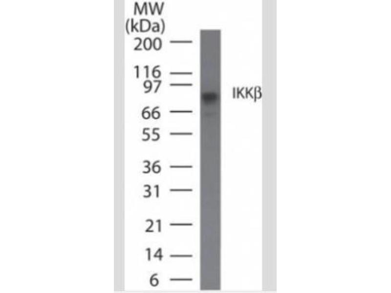 Western Blotting (WB) image for anti-Inhibitor of kappa Light Polypeptide Gene Enhancer in B-Cells, Kinase beta (IKBKB) antibody (ABIN4324301)
