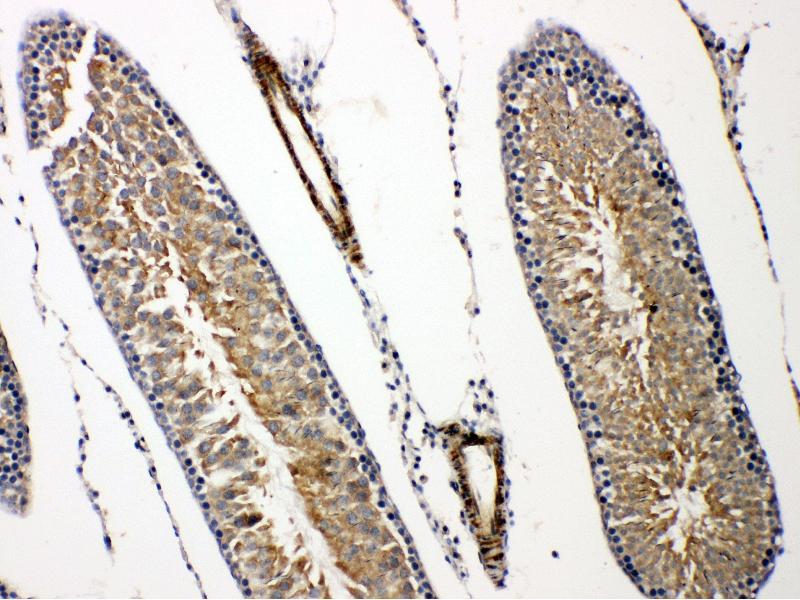 Immunohistochemistry (IHC) image for anti-Prolactin Receptor (PRLR) (AA 591-605), (C-Term) antibody (ABIN3043973)
