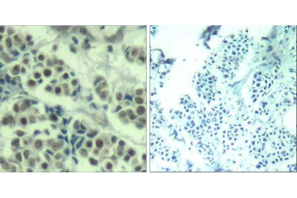 Immunohistochemical analysis of paraffin-embedded human breast carcinoma tissue using MDM2 (Ab-166) Antibody (E021550).