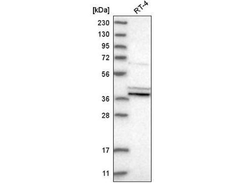 Western Blotting (WB) image for anti-Prostaglandin E Synthase 2 (PTGES2) antibody (ABIN5079048)