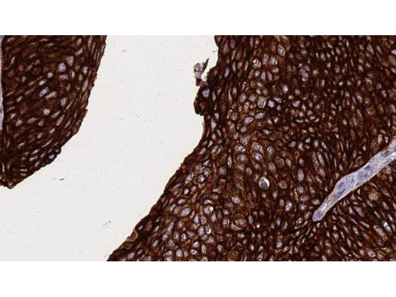 Immunohistochemistry (IHC) image for anti-Fas (TNF Receptor Superfamily, Member 6) (FAS) antibody (ABIN6261680)