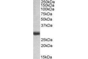 Western Blotting (WB) image for anti-FGF5 antibody (Fibroblast Growth Factor 5) (C-Term) (ABIN2464972)