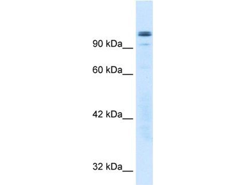 Western Blotting (WB) image for anti-General Transcription Factor III (GTF2I) (N-Term) antibody (ABIN182440)
