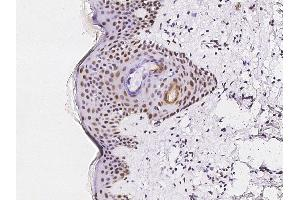 Image no. 2 for anti-Activating Transcription Factor 1 (AFT1) (N-Term) antibody (ABIN6924002)