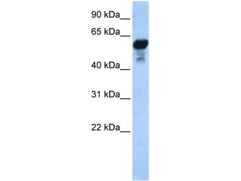 Western Blotting (WB) image for anti-Aldehyde Dehydrogenase 1 Family, Member B1 (ALDH1B1) (Middle Region) antibody (ABIN2774223)